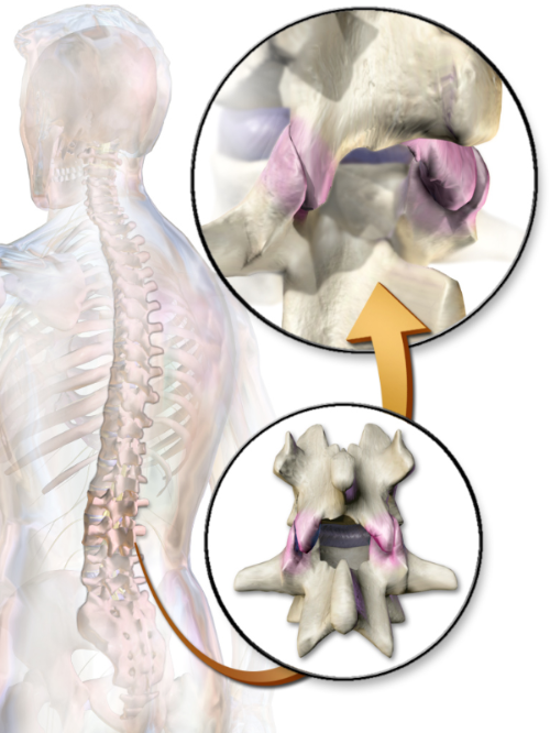 Medical illustration of vertebrae of spine showing Facet joints