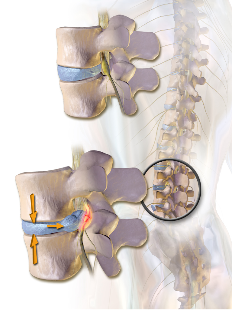 Medical illustration showing vertebrae of spine with herniated intervertebral disc impinging on a nerve root as it exits the spine