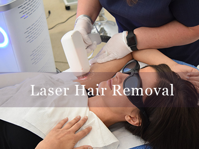 Trilogyice Laser Hair Removal Trilogyice Laser Hair Removal is a new form of treatment that uses state of the art technology to reduce and remove all hair very effectively. Treatment is performed with a handheld device which emits three wavelengths, as opposed to a single wavelength. The three wavelengths (Alexandrite, ND Yag and Diode) are able to penetrate different depths within the skin which ensures comprehensive hair removal.