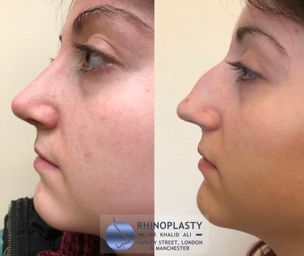 In this blog I will be detailing case studies of particularly successful Rhinoplasty, Otoplasty and other Facial Plastics procedures to explain how great a difference it can make on one's life both aesthetically and functionally.