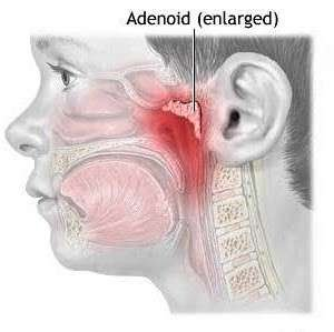 Adenoids and Adenoidectomy (Children) Adenoids are made up of lymphoid tissue and are located at the back of the nose and the upper part of the throat. An adenoidectomy is the operation to remove the adenoids.