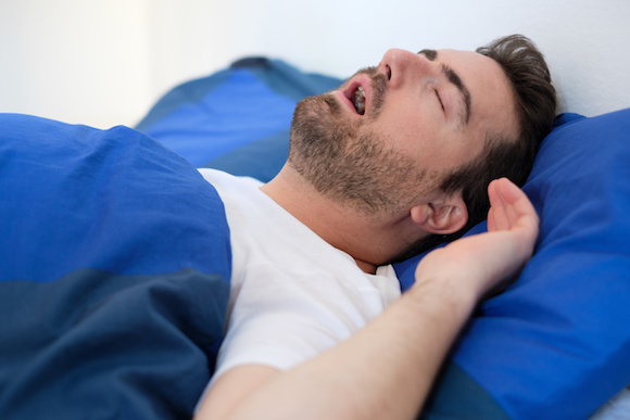 Snoring and Sleep Apnea Snoring is a very common condition that can have significant impacts on daily activity if it's associated with obstructive sleep apnea.