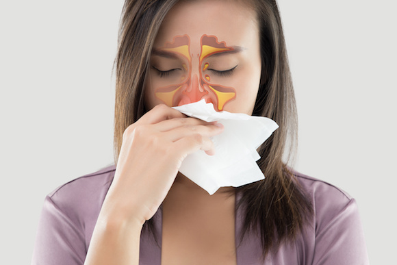 Sinusitis Sinusitis is a common nasal condition that can significantly affect your everyday life.