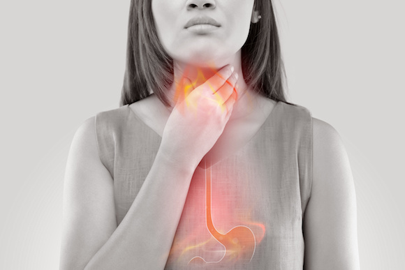 Acid Reflux This condition is due to regurgitation of stomach acid contents into your throat.