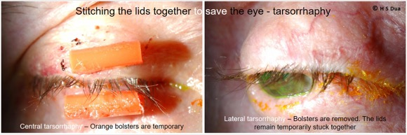 A thin fold of skin which protects the eye.