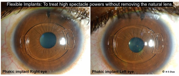 Surgery undertaken to give good sight without glasses.