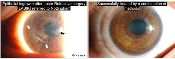 Surgery undertaken with Laser to give good sight without glasses.