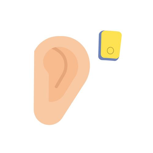 Bone Conducting Hearing Implants A bone conducting hearing implant is a hearing implant that works through direct bone conduction, working independently of the ear canal and middle ear.