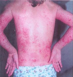 Terrible Skin Rash 2